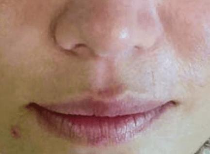 After-Tretman crvenila