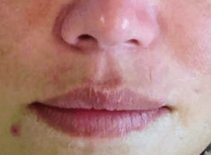 Before-Tretman crvenila