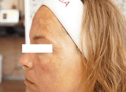 After-Hiperpigmentacija