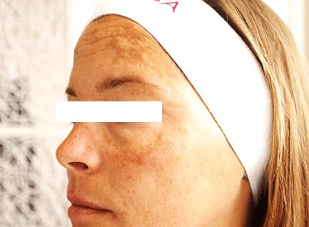 Before-Hiperpigmentacija