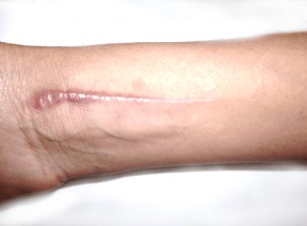 Before-Tretman oziljaka