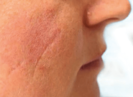 Before-Tretman oziljak 1